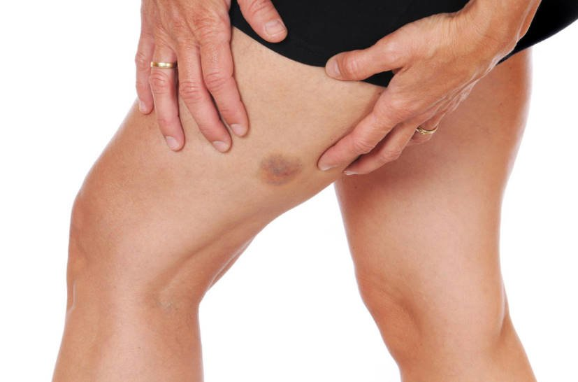 First Aid for Bruises and Sprains