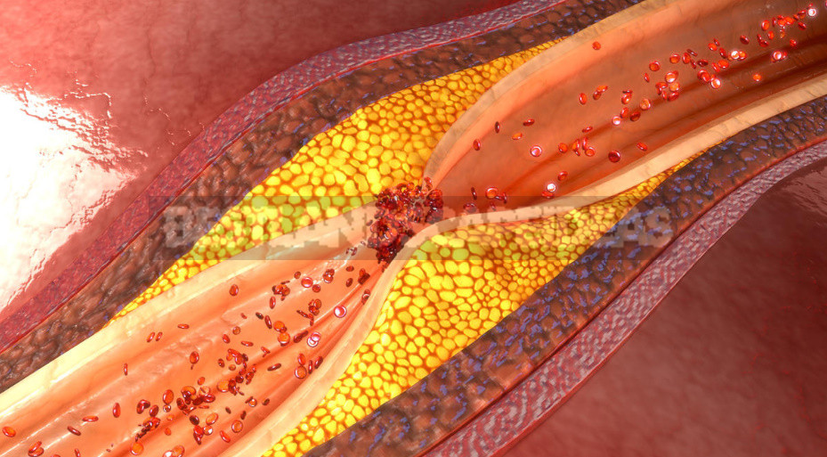 Truth and Myths About Cholesterol